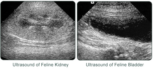 Ultrasound of the Kidney and Bladder