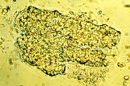 Urinary Cast
